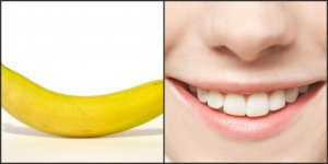 banánmosoly